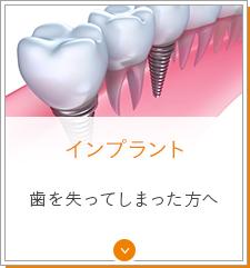 インプラント 歯を失ってしまった方へ