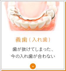 義歯(入れ歯) 歯が抜けてしまった、今の入れ歯が合わない